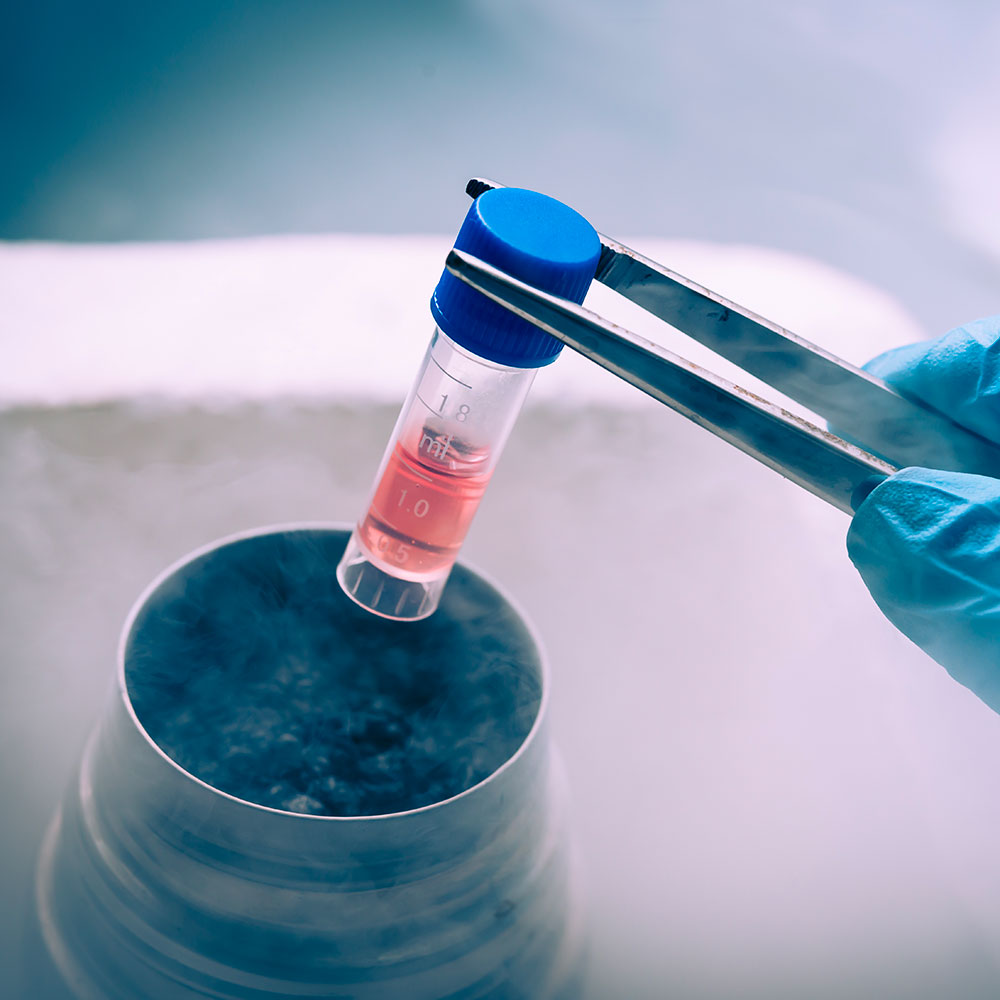 What is cryopreservation?